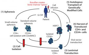 """Figure 1: A cell-delivered gene therapy process begins with (1) apheresis, in which granulocyte colony stimulating factor (G-CSF) is administered to stimulate production of stem cells and their release into blood. Small-volume apheresis is taken for CD4+ T-cell isolation, and larger volumes are taken for CD34+ hematopoietic stem progenitor cells (HSPCs). After (2) a cell isolation step to purify the desired cell populations (T cells or HSPCs), purified cells are transduced with a therapeutic lentiviral vector (3). Following harvest of transduced T cells and HSPCs (4), modified cells are collected and cryopreserved. Finally (5), genetically modified autologous cells are transplanted back to the same patient. Busulfan chemotherapy is administered before transplantation to create """"space"""" in the patient's bone marrow for the therapeutically modified cells."""